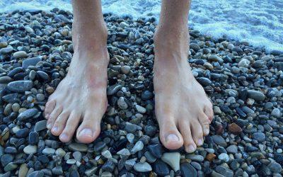 Foot Pain: Plantar Fasciitis Alert